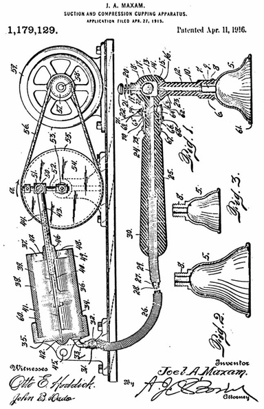Patent for a complex cupping pump.jpg