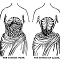 The Natural Waist and the Effects of Lacing